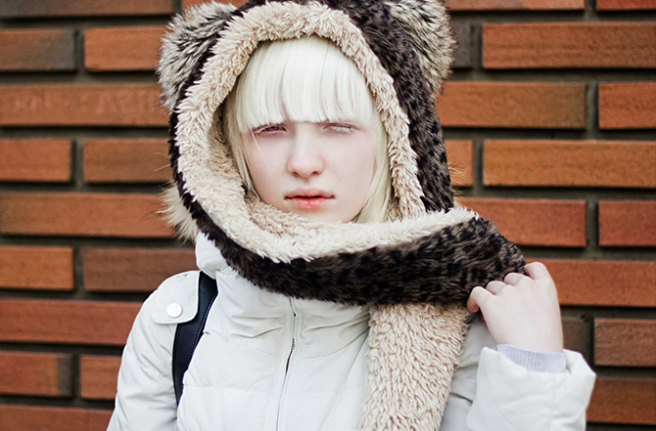 1a-soft-as-snow-beautiful-models-with-albinism