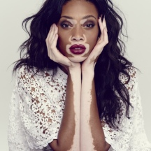 winnie-harlow-the-observer-photos1
